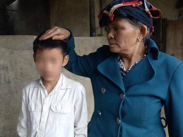 Bé trai 12 tuổi phải nhập viện điều trị vì bị bố dượng bạo hành đa chấn thương
