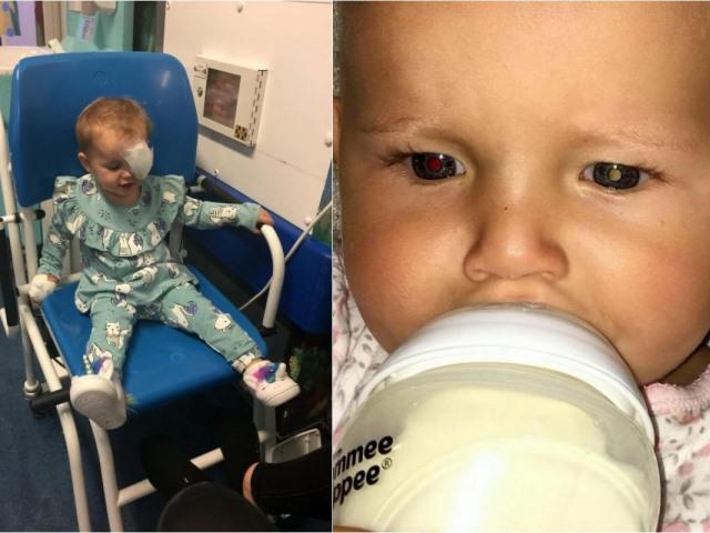 Bà mẹ chia sẻ kinh nghiệm nhận biết trẻ bị ung thư mắt qua đôi mắt mèo