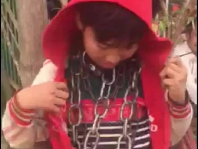 Phía sau câu chuyện bé trai bị chú ruột khóa xích sắt nhiều vòng trên cổ ở Thanh Hóa