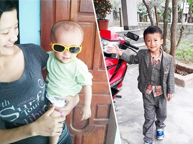 Bé trai mắc não úng thủy bị trả về, lòng can đảm giúp mẹ đơn thân cứu sống con trai