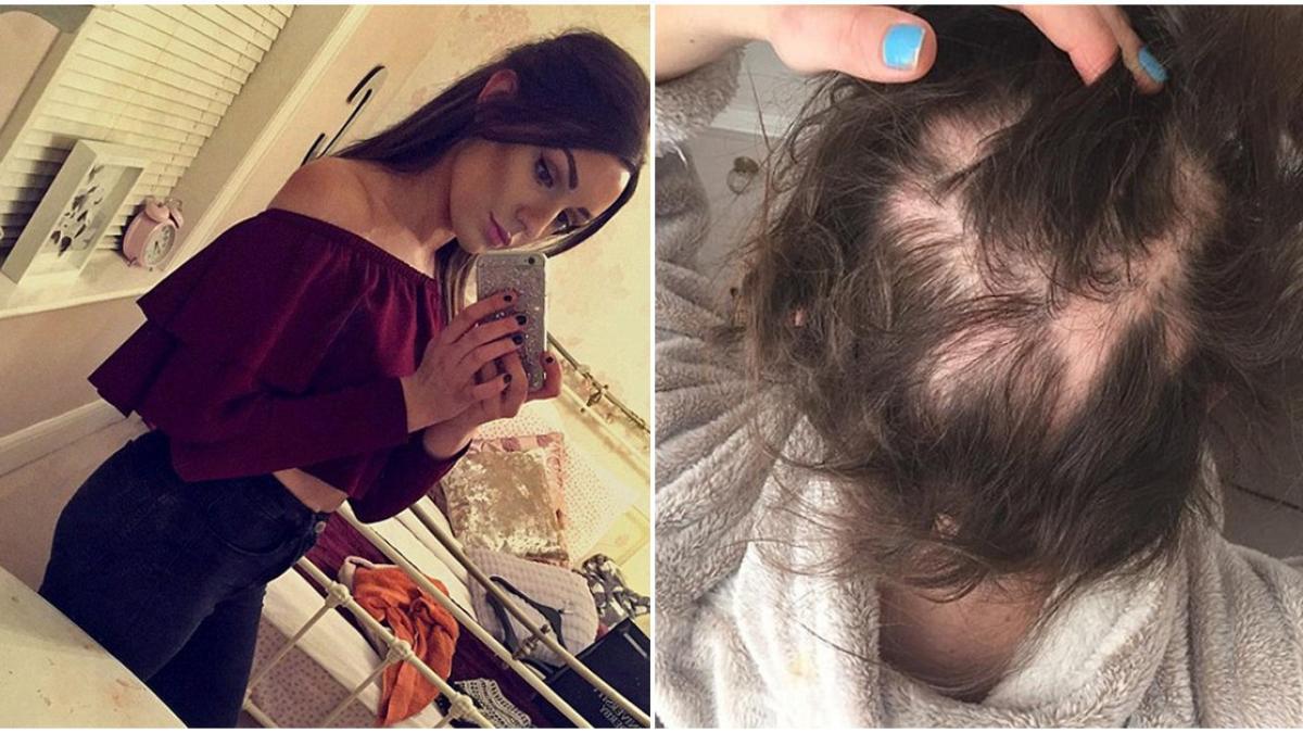 Chứng rụng tóc khiến tóc cô gái rụng từng mảng, lông mày cũng không có