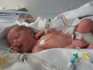 Bà mẹ hai lần đi sinh không biết đau vì đều... ngất trước khi bác sĩ mổ đẻ