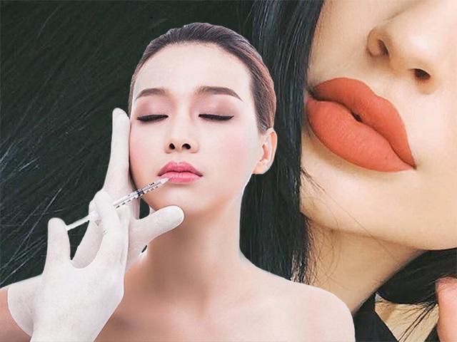 Muốn có đôi môi căng mọng trái tim, phương pháp thẩm mỹ này là điều bạn đang tìm kiếm!