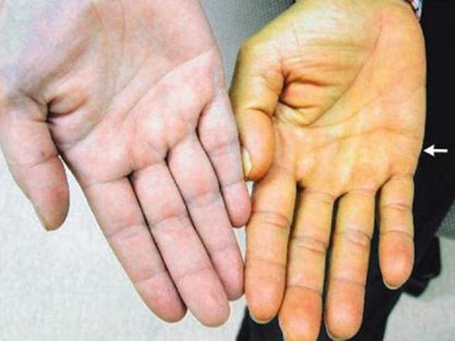 Viêm gan B - căn bệnh cả nhà dễ mắc nhưng ai cũng bỏ qua