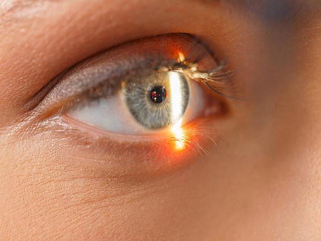 Phẫu thuật mắt bằng laser, người phụ nữ bị đốt cháy luôn võng mạc