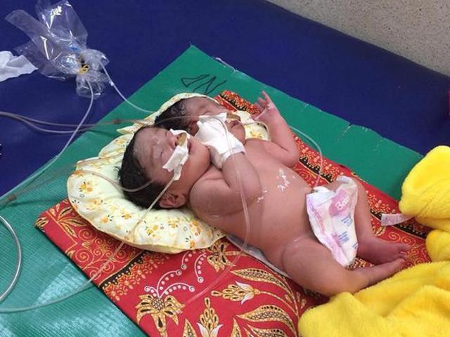Không đi siêu âm thai, mẹ khóc nghẹn khi thấy con chào đời có 2 đầu