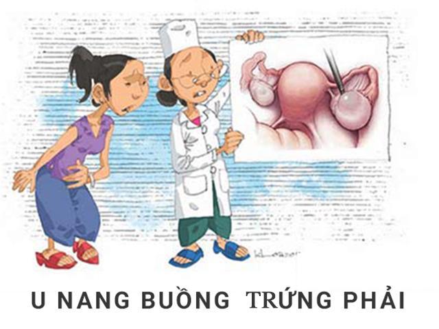 Phụ nữ cẩn trọng trước căn bệnh u nang buồng trứng phải