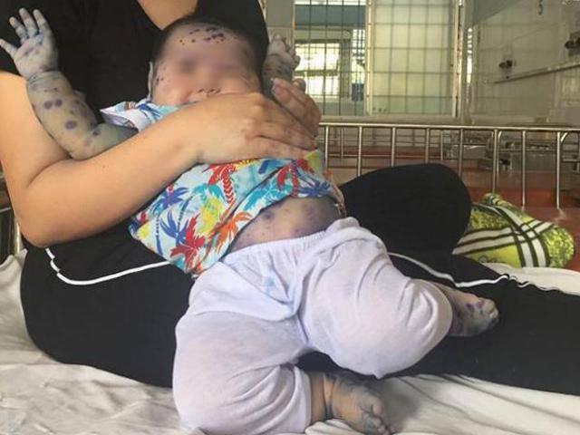 TP.HCM: Mẹ không tiêm phòng trước sinh, nhiều trẻ dưới 3 tháng nhập viện vì mắc thủy đậu