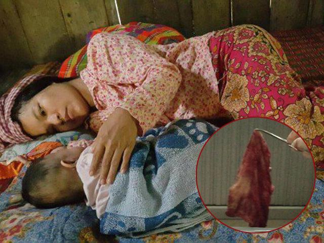 Sau sinh 3 tháng vẫn âm ỉ đau bụng, bà mẹ tá hỏa khi phát hiện sự thật