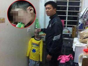 Vụ bé trai 10 tuổi bị cha đẻ, mẹ kế bạo hành: Giật mình kết quả giám định thương tật