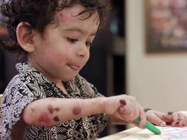 Cậu bé sinh ra với căn bệnh tồi tệ nhất thế giới, mỗi bước đi là một nỗi cực hình