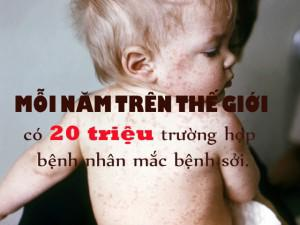 Trẻ bị sởi có thể điều trị tại nhà như thế nào để bé nhanh khỏi?
