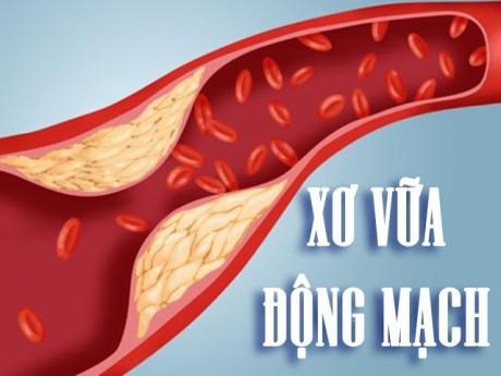 Cảnh giác trước bệnh xơ vữa động mạch có thể dẫn đến tử vong bất ngờ