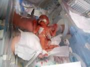 Sinh non 23 tuần thai, mẹ hốt hoảng khi có thể nhìn xuyên qua da đầu con