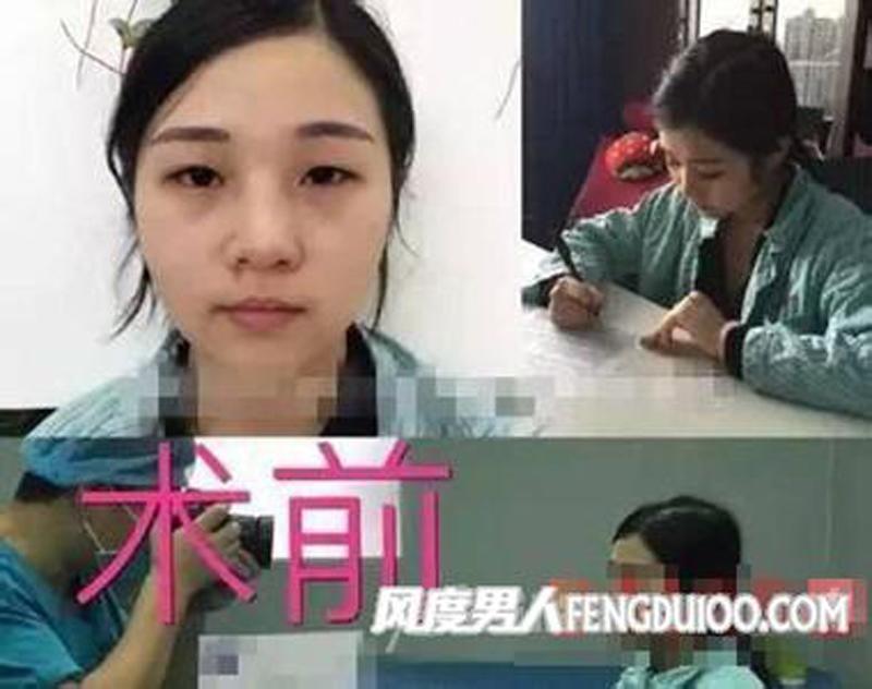 Cô gái này đã có gần 10 năm phẫu thuật để giống Phạm Băng Băng.