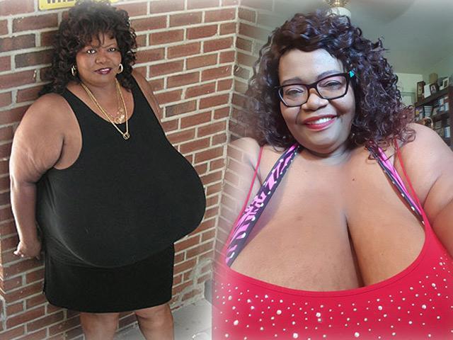 Người phụ nữ một bước lên tiên nhờ bộ ngực vĩ đại nhất thế giới do mắc bệnh lạ