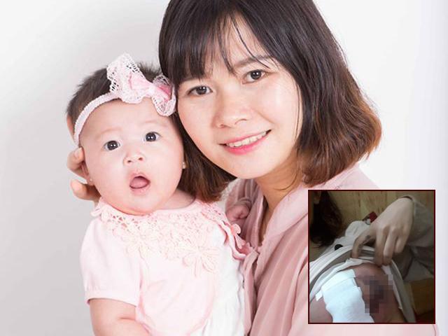 Bà mẹ đau gấp trăm lần đi đẻ, ngực tan nát vì chữa áp xe bằng mẹo dân gian