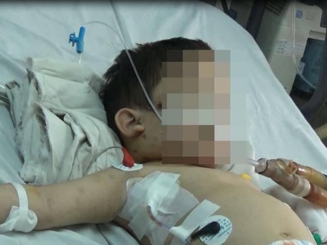Bé trai 29 tháng tuổi bị chó cắn dã man vùng mặt