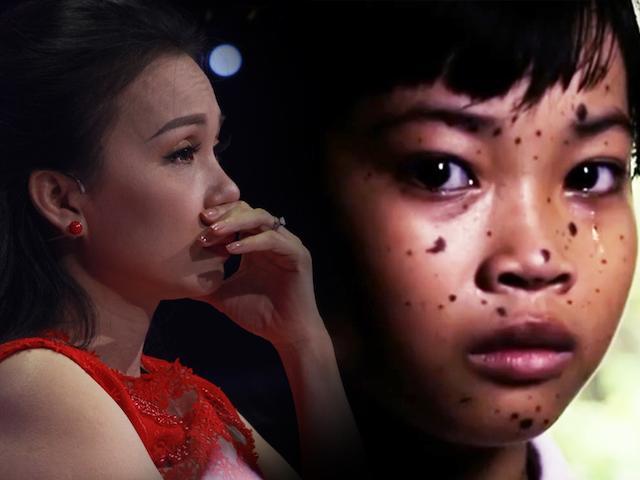 Cẩm Ly, Trấn Thành xót xa cô bé bị bạn bè gọi là chó đốm vì căn bệnh quái ác