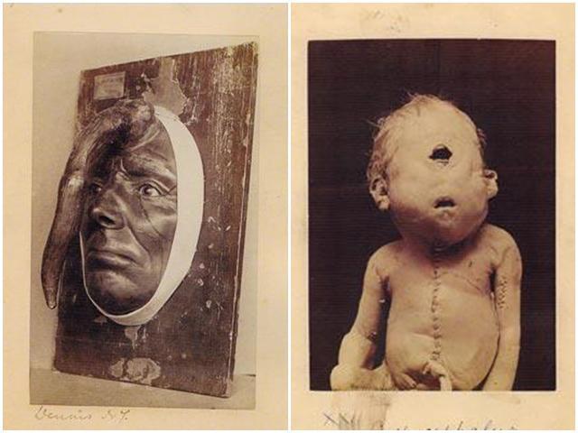 Những hiện tượng quái dị nhất thế giới được lưu giữ trong lịch sử khiến giới y học đau đầu