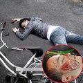 Làng sao - Cao Thái Sơn xác nhận tai nạn nát mặt là thật