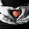 Bà bầu - Tuần 24: Lạc quan lên nào mẹ Mít!