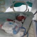 Tin tức - Thanh Hóa: Cứu sống bé sơ sinh nặng 500g