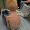 Tin tức - Mẹ kế bỏ đói con 5 tuổi đến suy dinh dưỡng