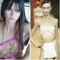 Làm đẹp - 7 người mẫu tử vong vì giảm cân