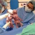 Tin tức - Cặp song sinh nắm chặt tay khi vừa chào đời