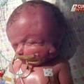 Tin tức - Bé gái có 2 khuôn mặt, 2 bộ não chào đời ở Úc
