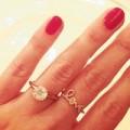 Làm đẹp - Rộ mốt phẫu thuật ngón tay đeo nhẫn cưới
