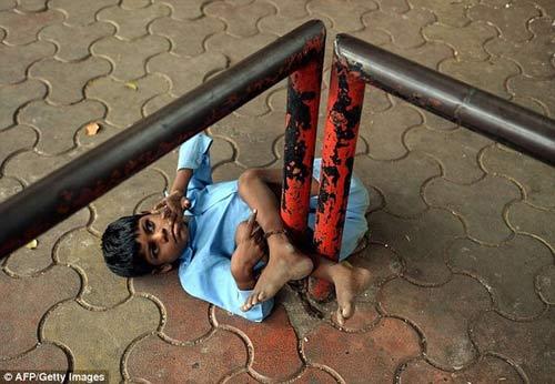 Xót xa bé 9 tuổi bị bà xích chân-1