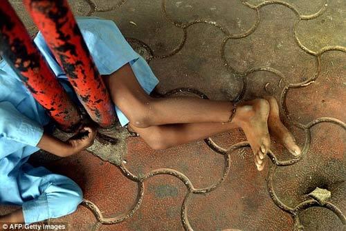 Xót xa bé 9 tuổi bị bà xích chân-2