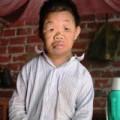 Tin tức - Người đàn ông U50 trong hình hài đứa trẻ lên 10