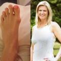 Làm đẹp - Mốt phẫu thuật chân để đi giày cao gót