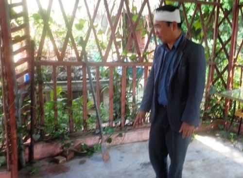 3 ba chau bi sat hai: nghi pham lam li khong khai - 3