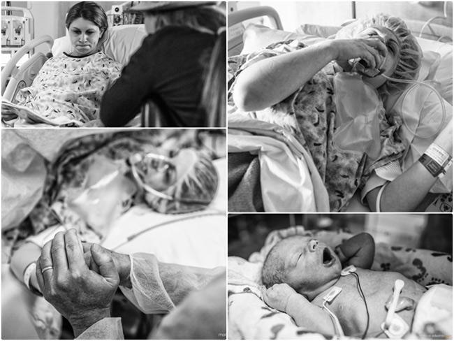 Việc sinh mổ khẩn cấp với bất cứ sản phụ nào đều là điều bất ngờ và khiến họ không ít lo lắng. Với mẹ bầu đến từ Loveland, CO, Mỹ này cũng vậy. Chị bị vỡ ối trước ngày dự sinh 1 tháng. Ngay sau đó sản phụ đã nhập viện để chờ cơn sinh.  Tuy nhiên trong thời gian chờ đợi này, thai nhi có dấu hiệu bị suy hô hấp, nhịp tim bắt đầu giảm dần và còn bị dây rốn quấn cổ nên bác sĩ đã chỉ định phải sinh mổ cấp cứu.  May mắn em bé Jayden đã chào đời an toàn và có sức khỏe tốt dù sinh non trước 1 tháng.