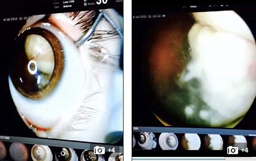 Bố Việt cảnh báo cha mẹ kiểm tra ung thư mắt trẻ bằng iPhone-2