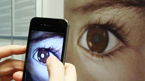 Bố Việt cảnh báo cha mẹ kiểm tra ung thư mắt trẻ bằng iPhone-3