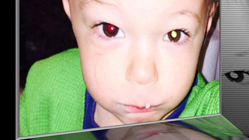 Bố Việt cảnh báo cha mẹ kiểm tra ung thư mắt trẻ bằng iPhone-1