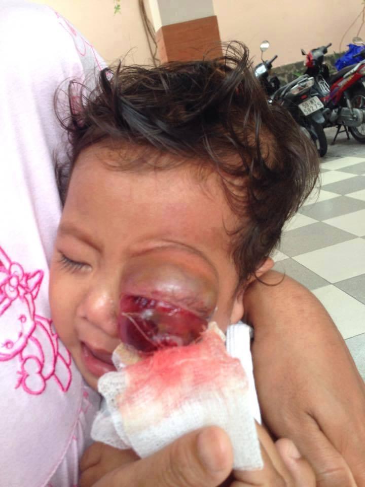 hoàn cảnh thuong tam của cháu bé bị u mát lòi - 1