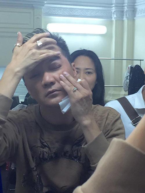 dam vinh hung bi tai nan chay mau mat tren san khau - 3