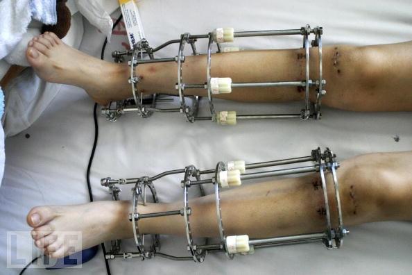 """Bên trong """"xưởng"""" kéo dài chân người ở Ấn Độ-3"""