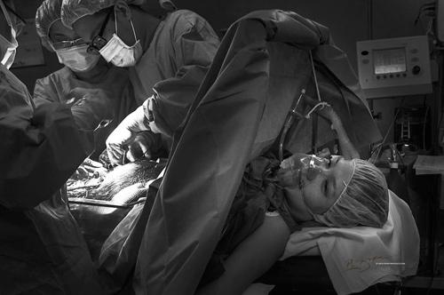 Ảnh cận cảnh vợ sinh mổ qua ống kính nhiếp ảnh gia Việt-1