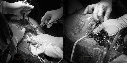 Ảnh cận cảnh vợ sinh mổ qua ống kính nhiếp ảnh gia Việt-3