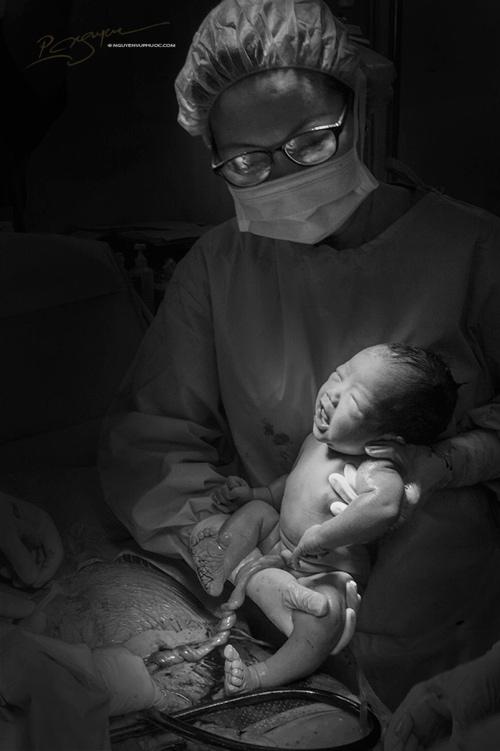 Ảnh cận cảnh vợ sinh mổ qua ống kính nhiếp ảnh gia Việt-6