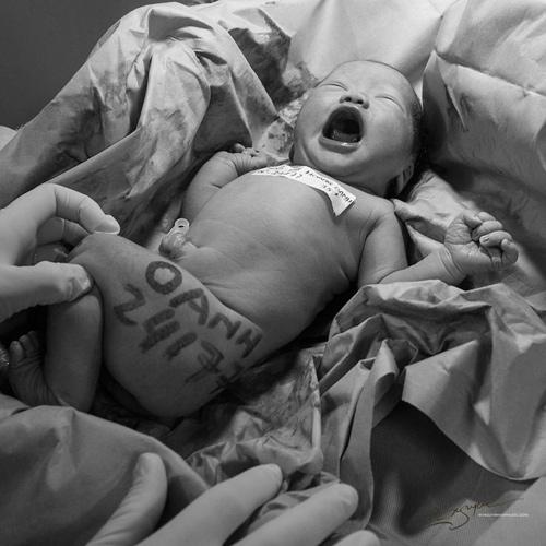 Ảnh cận cảnh vợ sinh mổ qua ống kính nhiếp ảnh gia Việt-7