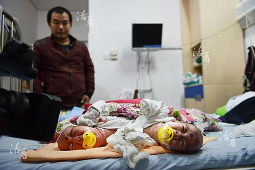 Xúc động khoảnh khắc hai bé sơ sinh dính liền được tách rời-1
