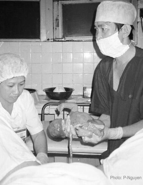 Bộ ảnh đẻ thường độc đáo của mẹ Việt năm 2000-5